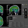Brainmagix v2.1.1